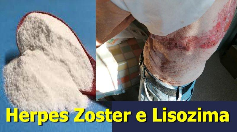 Efficacia del Lisozima nell'Herpes Zoster (fuoco di Sant'Antonio)